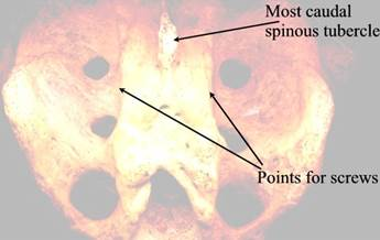 Prosthetic pix\Fig 9- sacrum scan small.jpg